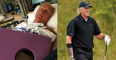 Bionic Shark: Greg Norman returns to golf with prosthetic arm