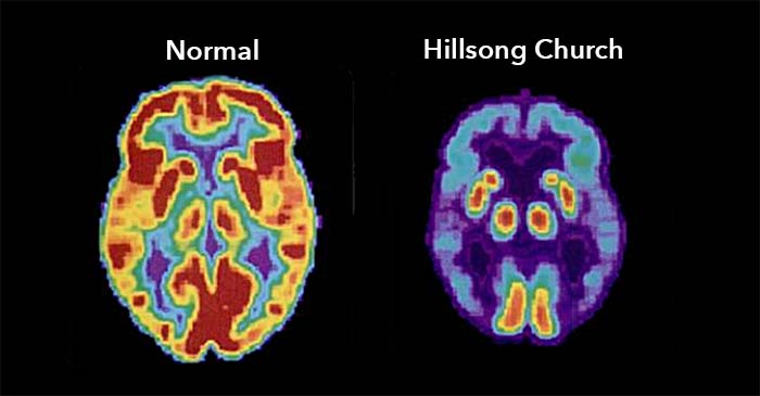Scientists establish link between diminished brain function and Hillsong Church