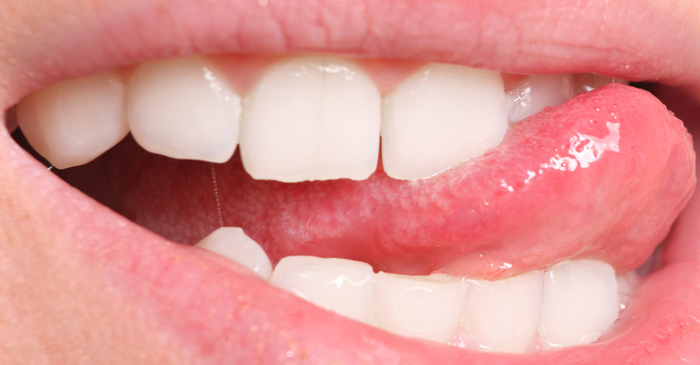 Tongue Simply Not Capable Of Dislodging Food Caught Between Teeth